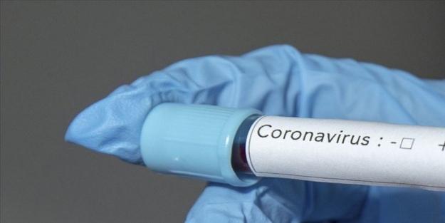 Koronavirüsü kalıcı olarak temizleyen endüstriyel ürün geliştirildi