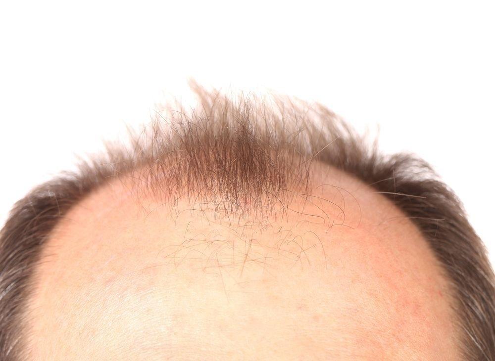 """""""Kullandığınız ilaçlar saçlarınızın dökülme nedeni olabilir"""""""