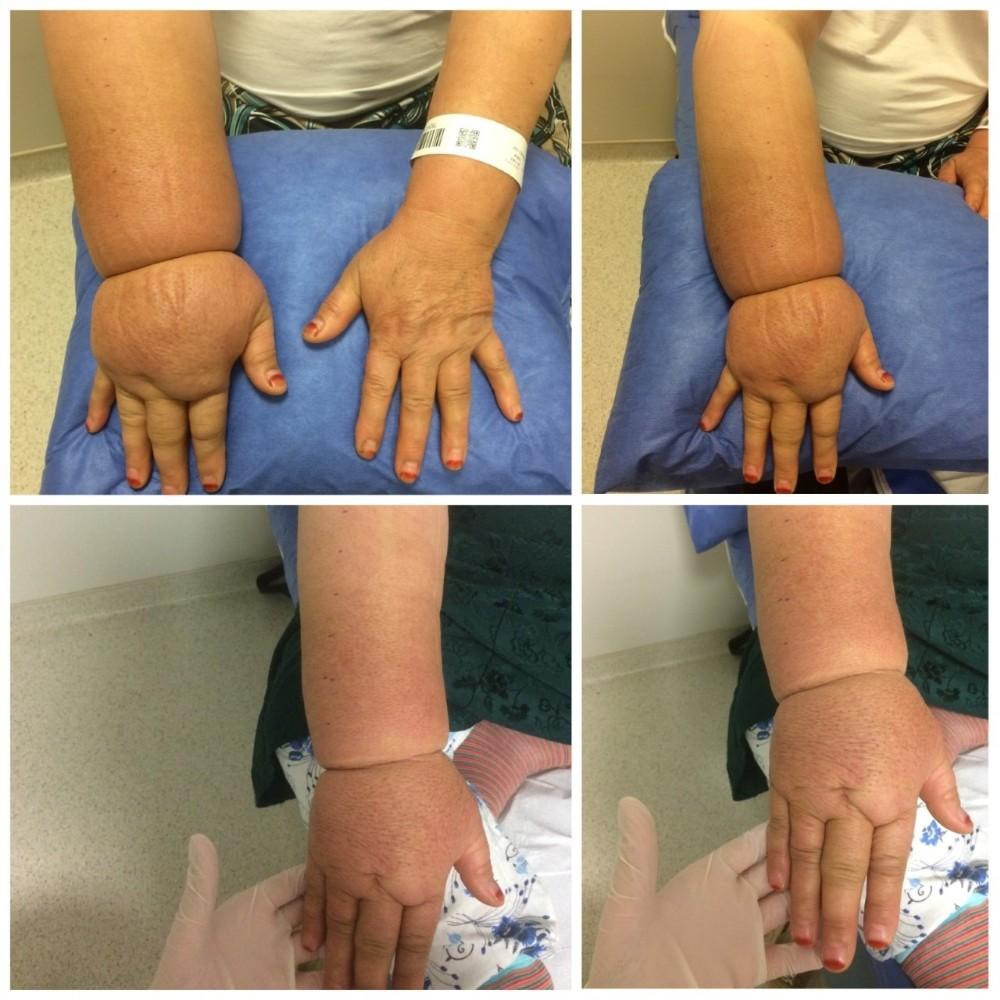 Lenfodem hastalarına ameliyatsız tedavi