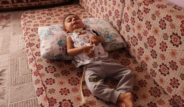 Malatya'da küçücük bedeni ile yaşam savaşı veriyor
