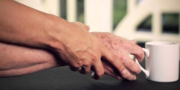 Parkinson hastalığının 4 belirtisi
