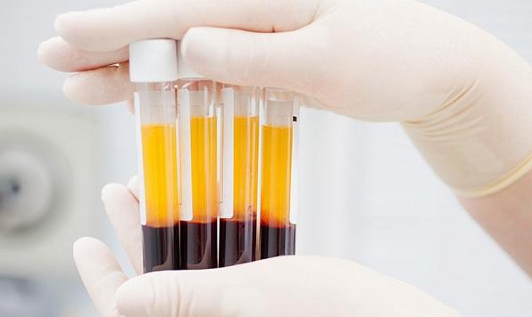 Plazma tedavisi nedir? Plazma tedavisi nasıl yapılmakta?