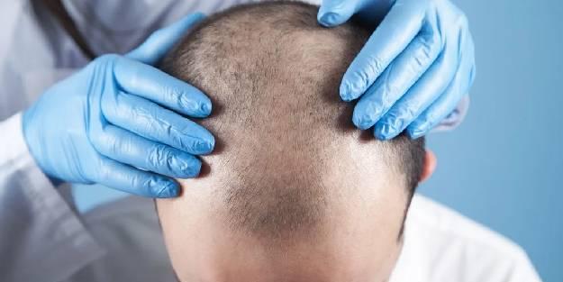 PRP ile saçların güçlendirilmesi mümkün