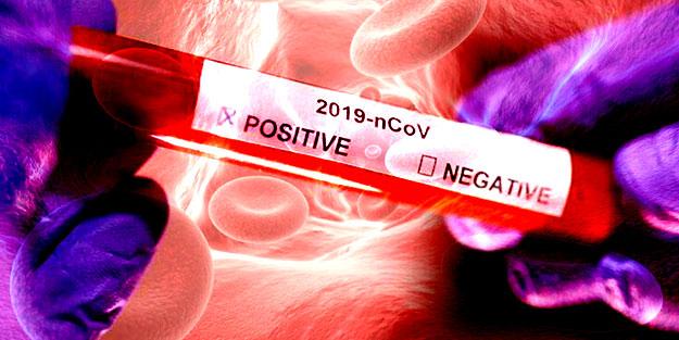 """Rus uzman """"Bağışıklık gelişmeyebilir"""" deyip açıkladı! Koronavirüse karşı bağışıklık nasıl kazanılır?"""