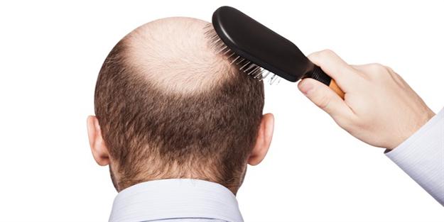 Saç dökülmesinin 9 nedeni