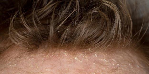 Saç kepeği neden olur? Saç kepeği nasıl geçer? Kepek oluşumunu engelleme yolları