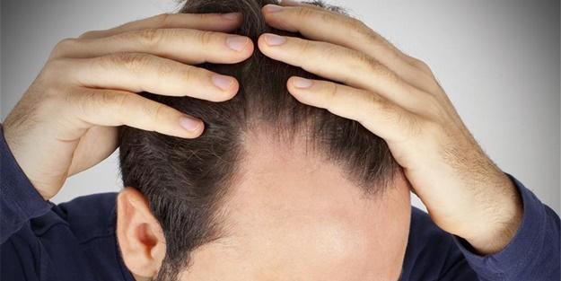 Saçı dökülenler bol bol tüketsin!