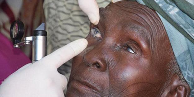 Sağlık Bakanlığı'ndan Batı'ya örnek hamle! 1 milyon Afrikalı ameliyat olacak