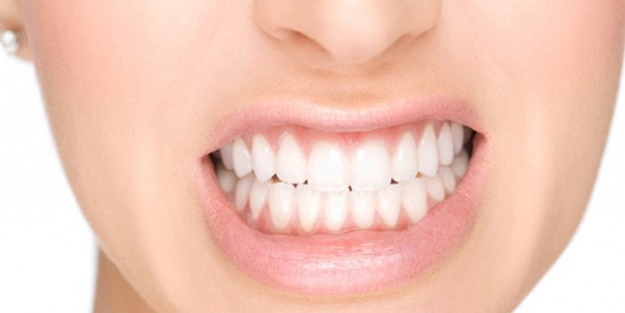 Sararan dişleri beyazlatmak için ne yapılmalı?