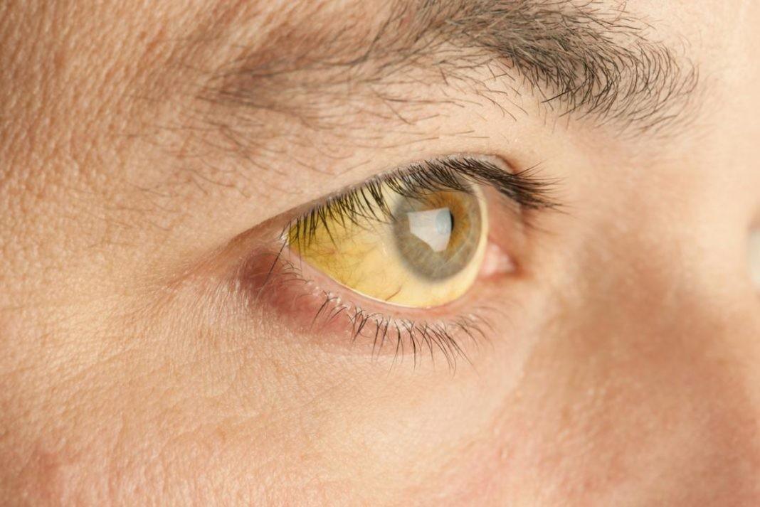 Sarı humma hastalığı nedir? Sarı humma aşısı ve sarı humma belirtileri