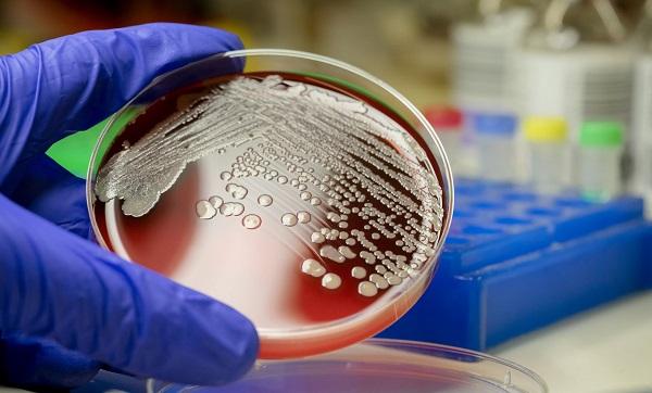 Sepsis nedir? | Koronavirüs sepsis ne demek?