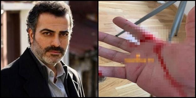 Sermiyan Midyat'tan 'kadın oyuncuya dayak' iddiası! Solak medya olayı görmezden geldi