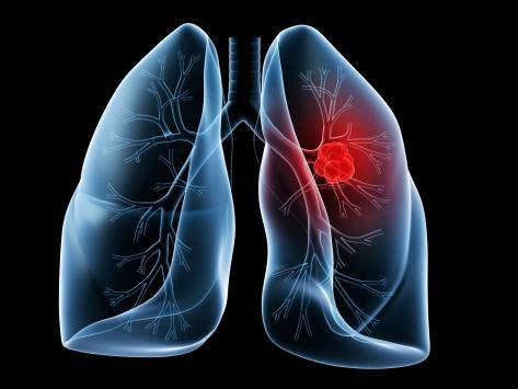 Akciğer kanserini 25 kat arttırıyor