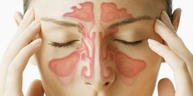 Sinüzit için doğal tedavi