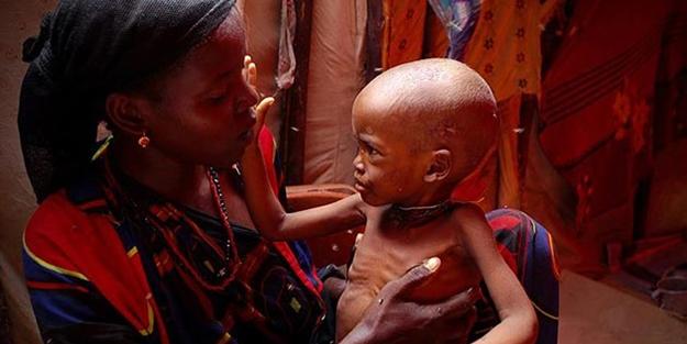 Somali'de milyonlarca kişi kıtlığın eşiğinde