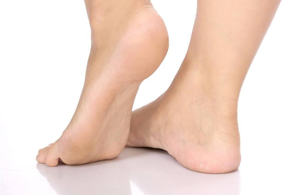 Topuk çatlakları nasıl giderilir? Çatlayan topuklara ne iyi gelir?