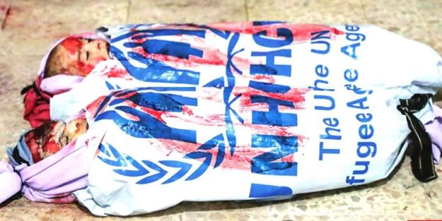 Üst aklın kuklası BM ancak kefen oluyor!