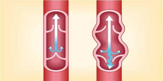 Varis ağrılarınızı azaltmaya yönelik tedbirler