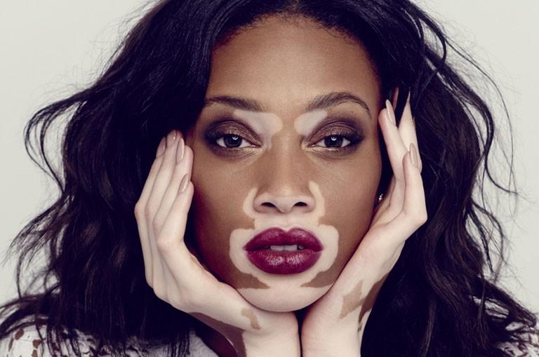 Vitiligo (ala hastalığı) nedir, belirtileri ve tedavisi nedir?