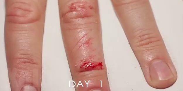 Yaralı parmağın 33 günde iyileşme videosu büyüledi