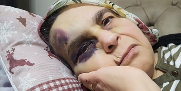 Yaşlı çifte öldüresiye dayak: Kadını bu hale getirdi!
