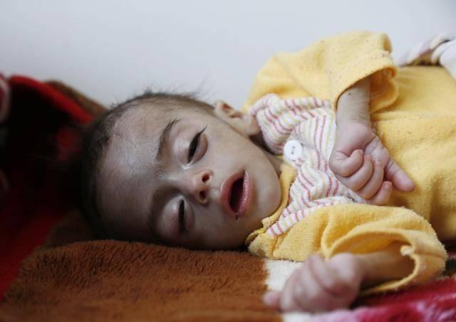 Yemen'de kıtlık çocukların hayatını tehdit ediyor