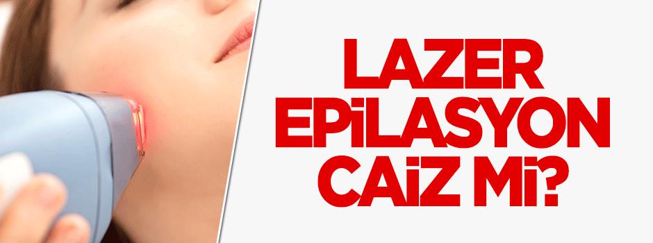 Lazer epilasyon caiz midir?