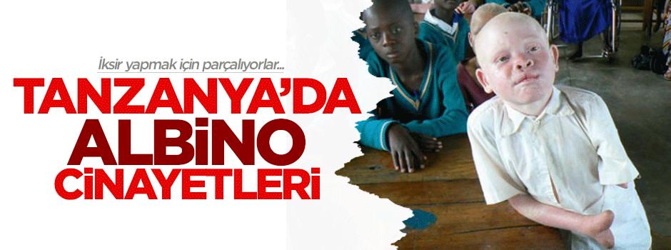 Tanzanya'da albino cinayetleri
