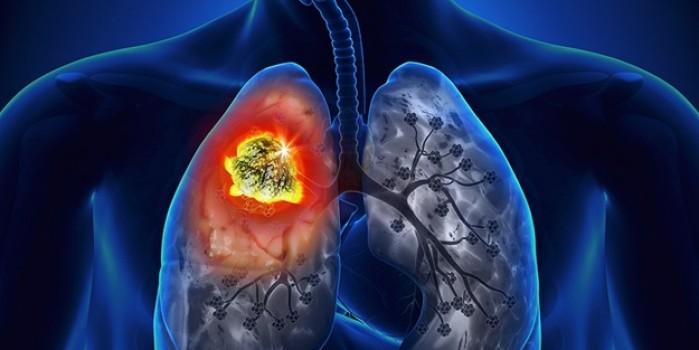 Akciğer kanserini yakından tanıyalım: Sebepleri, belirtileri...