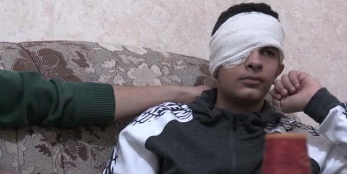 İsrail askerinin plastik mermiyle vurduğu Filistinli çocuk gözünü kaybetti