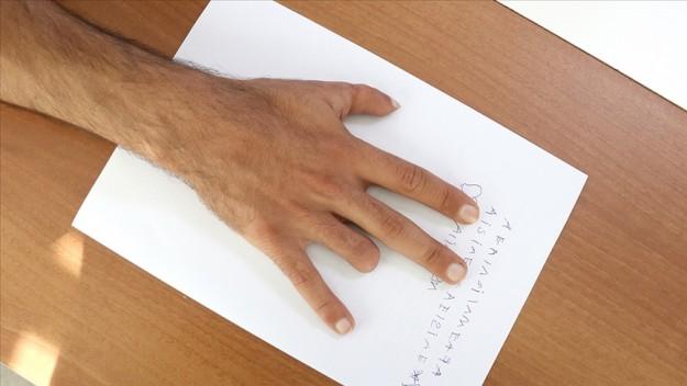 Konya'da yapılan 'parmak nakli' literatüre girdi